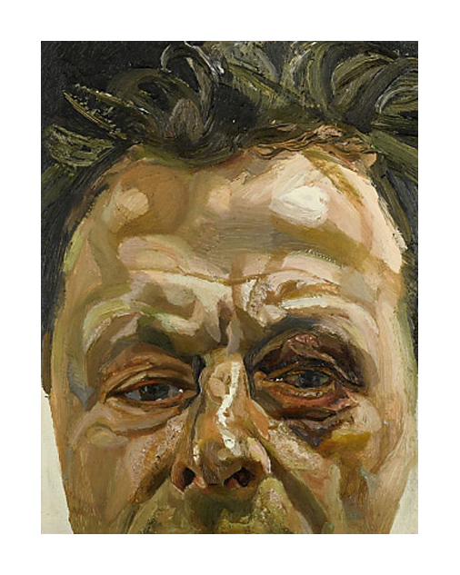 lucian-freud_self-portrait-with-a-black-eye_1978
